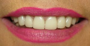 After Invisalign Clear Braces & Porcelain Veneers