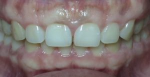 After Invisalign Clear Braces Case 03