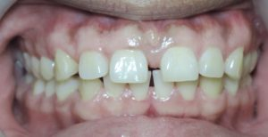Before Invisalign Clear Braces Case 03