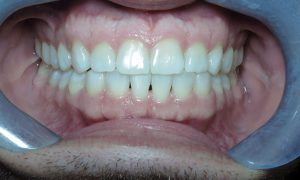 After Invisalign Clear Braces Case 02
