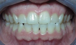 Before Invisalign Clear Braces Case 02