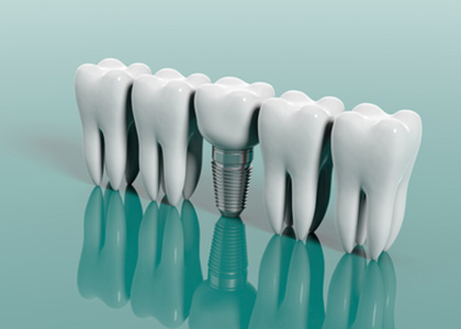 Replace missing teeth with dental implants for a natural-looking smile in Berkeley, CA
